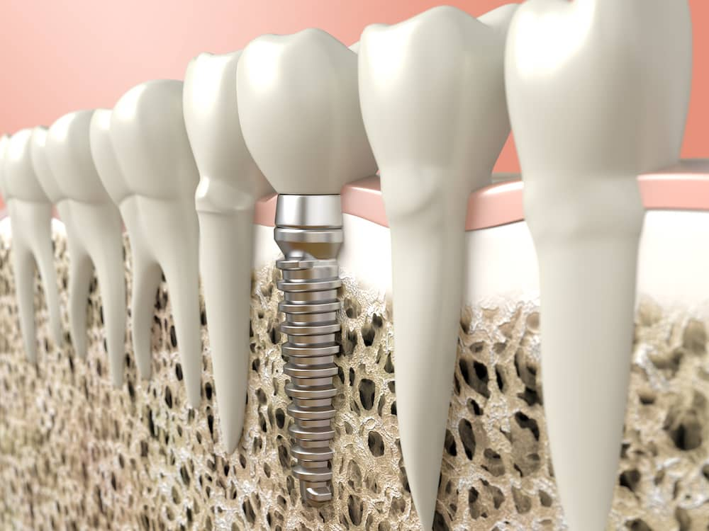 Dental implants shown digitally how they are screwed in.