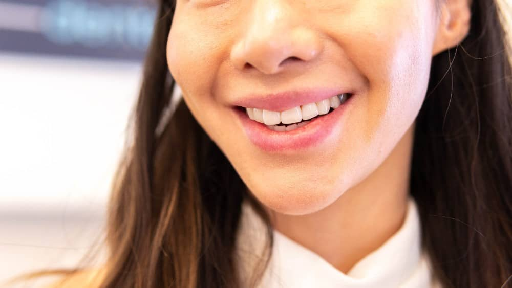 Services teeth whitening