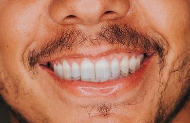 Teeth Grinding Bite Splints