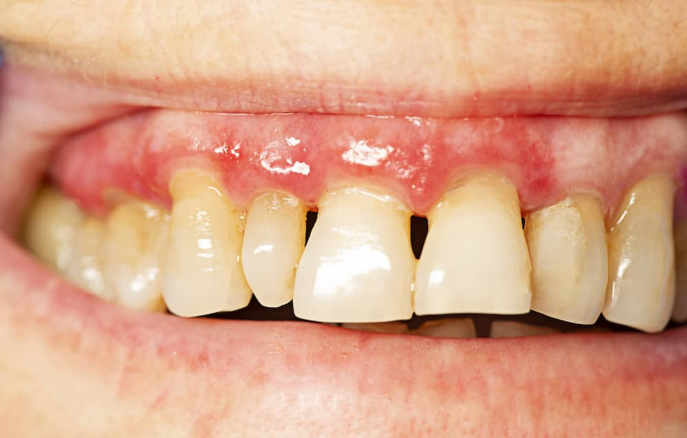 Third stage periodontis showing bad tooth erosion.
